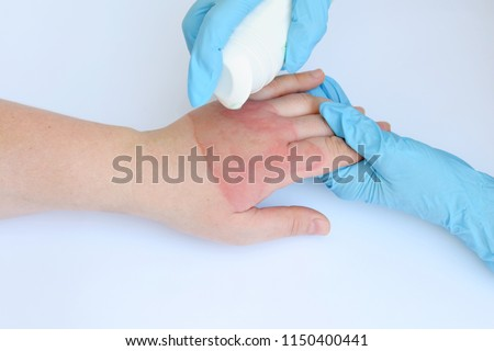 Doctor's hands holding female hand with second degree burns on white background. Treatment of burns by spray. Patient cheering and support Royalty-Free Stock Photo #1150400441