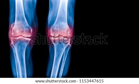 Osteoarthritis (OA) knee . film x-ray AP ( anterior - posterior ) and lateral view of knee show narrow joint space, osteophyte ( spur ), subchondral sclerosis, knee joint inflammation #1153447615
