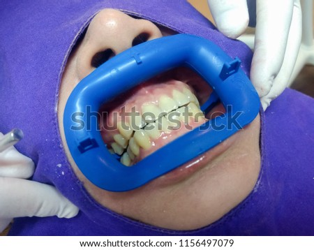 In-Office Professional Teeth Whitening procedure of dentist put in cheek retractor with care to Asian woman patient who prefer Whiter teeth. Women's Cosmetic and Aesthetic Dental Care Health Concept. #1156497079