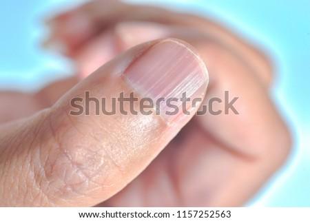 Longitudinal ridging nail #1157252563