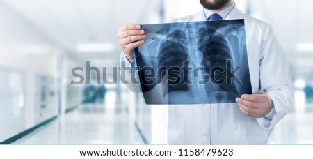 Doctor looking chest x-ray #1158479623