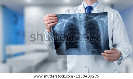 Doctor looking chest x-ray #1158480295