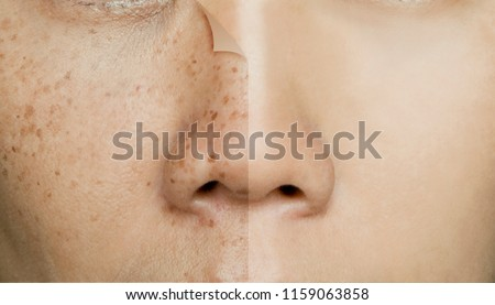 Before and After Retouching Freckles on Asian Woman Face, Skin Problems Royalty-Free Stock Photo #1159063858