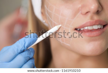 Beautiful young woman with squares grid on her face. Beautiful woman getting lifting injection in cheekbones. Injections of skin rejuvenation. Cosmetic procedures, injections, hyaluronic acid. #1161910210