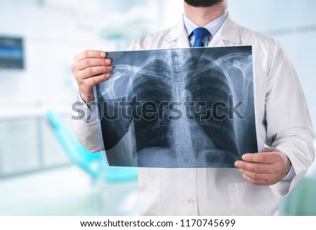 Young male doctor examining x-ray #1170745699