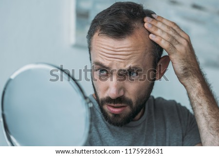 upset middle aged man with alopecia looking at mirror, hair loss concept  #1175928631