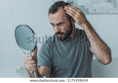 bearded middle aged man with alopecia looking at mirror, hair loss concept  #1175928634