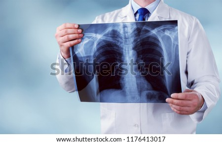 Young male doctor examining x-ray #1176413017