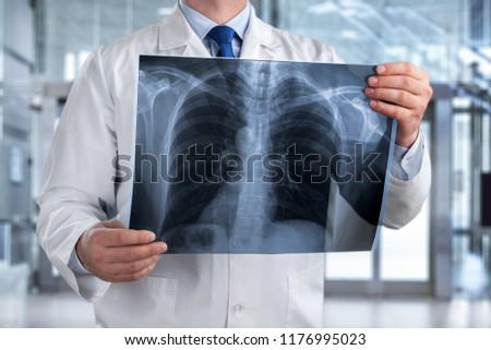 Doctor looking chest x-ray film in hospital. #1176995023