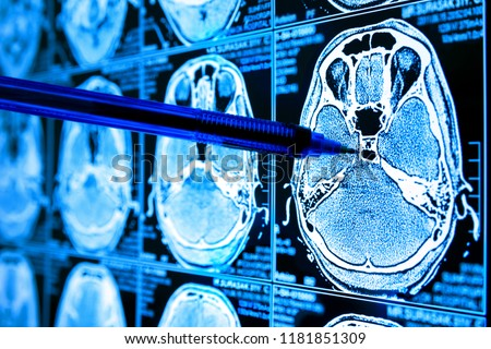 Artificial intelligence in smart healthcare hospital technology concept. Doctor point pen to AI biomedical algorithm screen and machine learning detect brain Pneumonia , cancer cell in X-Rays process.