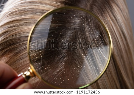 Close-up Of A Dandruff In Blonde Hair Seen Through Magnifying Glass Royalty-Free Stock Photo #1191172456