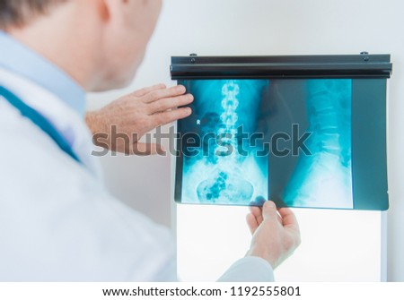 Caucasian Medical Doctor in His 50s Checking Xray Images. Digital Radiography. Healthcare Theme. #1192555801