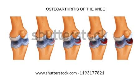 osteoarthritis of the knee #1193177821