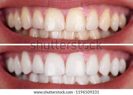 Close-up Of A Smiling Woman's Teeth Before And After Whitening #1196509231