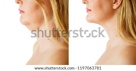 Woman before and after chin fat correction procedure #1197063781