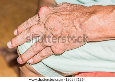 Severe gout in men suffering from joint pain, bone pain, gout, rheumatoid symptoms, radioactive sickness, ill man concept of male osteoporosis, injured bone, injury, pain, arthritis,arm, foot, knee #1205771854