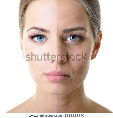 Anti-aging, beauty treatment, aging and youth, lifting, skincare, plastic surgery concept. Beautiful girl with young face and half face of old woman with wrinkles, dark circles, acne and comedones. #1213226890