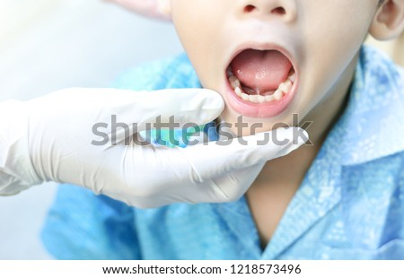doctor screening and diagnosis mouth of tongue-tie patient , dental health problem no.4 Royalty-Free Stock Photo #1218573496