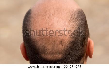 Bald head nape head baldness, hair transplant hair loss, stress #1221984925