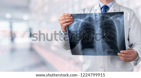 lung radiography concept. radiology doctor examining at chest x ray film of patient at hospital room. #1224799915