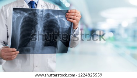 lung radiography concept. radiology doctor examining at chest x ray film of patient at hospital room. #1224825559