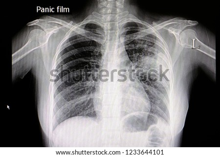 A chest x ray film of a patient with left middle lung pneumonia.  Medical Education. Abnormal xray in lung infections. Covid 19 pneumonia. Royalty-Free Stock Photo #1233644101