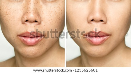Before and After Retouch Laser Freckles on Young Asian Woman Face #1235625601