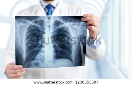 Young man doctor holding x-ray #1238555587