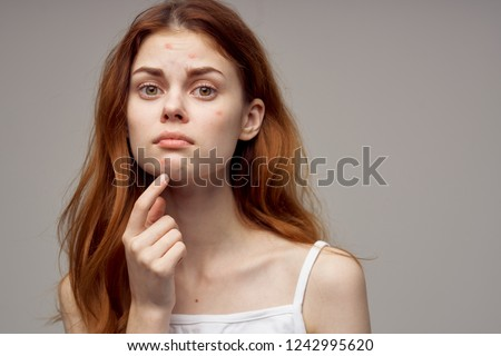 redheaded woman shows fingers on acne on her face                         #1242995620