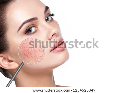magnifying glass showing couperose on face skin. Woman showing problems couperose-prone sensitive skin #1254525349