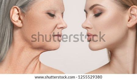 Comparison. Portrait of beautiful woman with problem and clean skin, aging and youth concept, beauty treatment and lifting. Before and after concept. Youth, old age. Process of aging and rejuvenation #1255529380