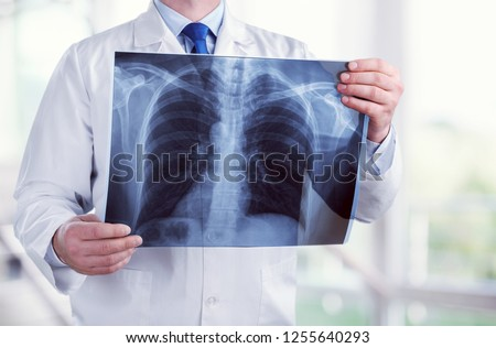 Young male doctor examining x-ray on white #1255640293