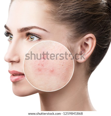 Young woman with acne skin in zoom circle. Over white background. #1259841868