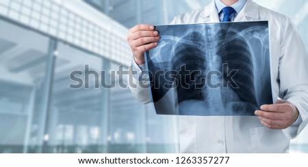 Xray radiology doctor hospital disease radiography ray #1263357277