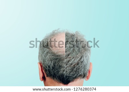 Before and after, Rear view of a male head without hair. Hair loss concept, bird's nest on the head. Problems with hair regrowth, shampoo for facial hair growth. #1276280374