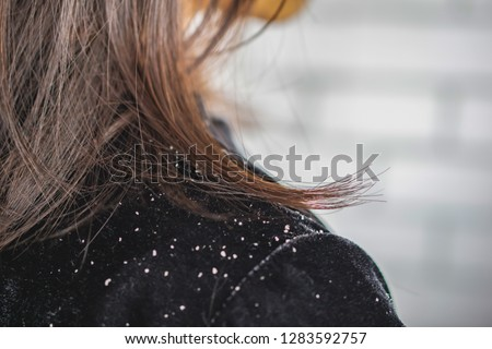 closeup woman hair with dandruff falling on shoulders Royalty-Free Stock Photo #1283592757