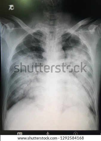 Film chest x-ray PA up right.Show abnormal of lung.ARDS(Acute respiratory distress syndrome) crisis of respiratory syndrome.Need medication for treatment.Medical concept. Royalty-Free Stock Photo #1292584168