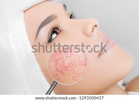 magnifying glass showing couperose on face skin. Woman showing problems couperose-prone sensitive skin #1293500437