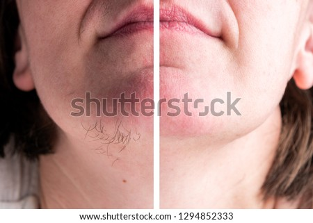 Woman with hairs on chin. Hair removal on face. Royalty-Free Stock Photo #1294852333