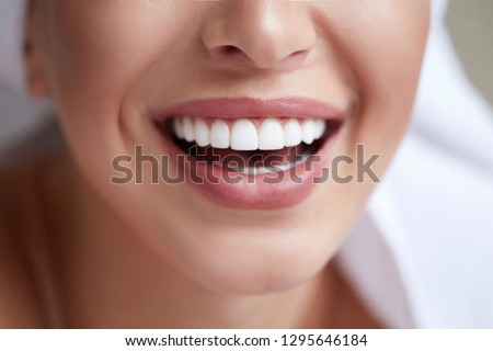 Healthy white smile close up. Beauty woman with perfect smile, lips and teeth. Beautiful Model Girl with perfect skin. Teeth whitening. #1295646184