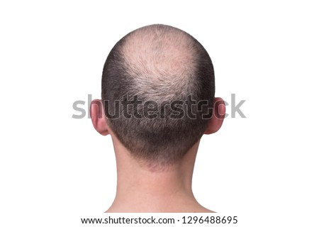 male head with thinning hair or alopecia #1296488695