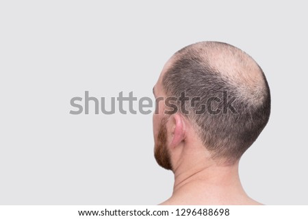 male head with thinning hair or alopecia #1296488698