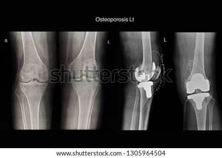 osteoporosis left knee and post operation total knee replacement knee left #1305964504