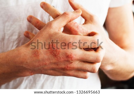 Man scratch oneself, dry flaky skin on hand with psoriasis vulgaris, eczema and other skin conditions like fungus, plaque, rash and patches. Autoimmune genetic disease. #1326695663