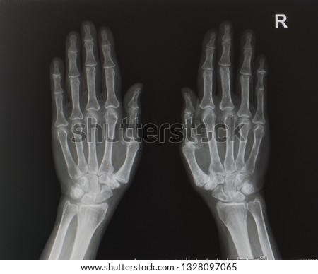 an anteroposterior x-ray or radiograph of both hand showing normal bone and joint. no sign of inflammation, arthritis or de quervain. #1328097065