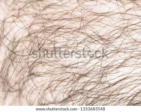Detail of human skin with hair, closeup. Hairy body of a man, excessive hairiness, depilation #1333683548