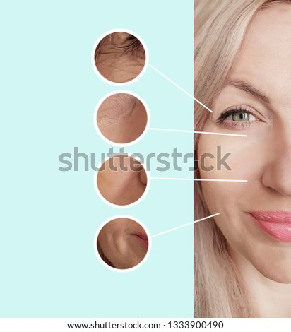 woman wrinkles face before and after procedures collage #1333900490