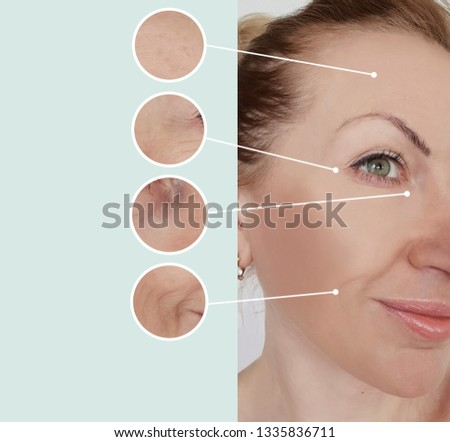 woman wrinkles before and after treatments #1335836711