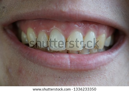 high smile line (gummy smile) #1336233350