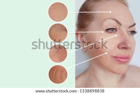 woman wrinkles before and after collage procedures #1338898838